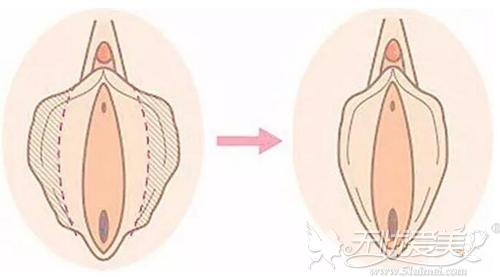 手术阴道紧缩后效果