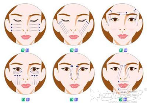需要通过面部提升来延缓衰老