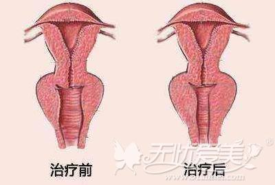 深圳伊婉阴道紧缩术