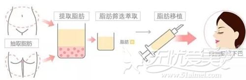 福州海峡注射自体脂肪垫下巴10800元起