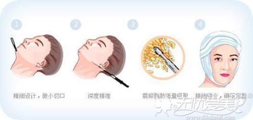 双下巴吸脂手术过程