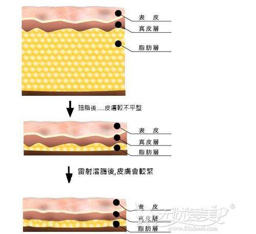 光纤溶脂去双下巴原理