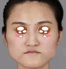 遵义韩美面部轮廓手术案例回顾 手术前后判若两人