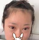 选择遵义韩美割双眼皮让我体验了破茧成蝶的蜕变术前