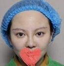 在遵义韩美整形做了鼻综合 原来告别塌鼻子如此简单