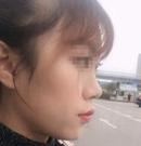 遵义韩美全软骨鼻综合手术经历分享 一个鼻子拯救一整张脸术前