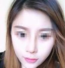 遵义韩美全软骨鼻综合手术经历分享 一个鼻子拯救一整张脸术后