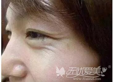眼袋加速眼纹形成