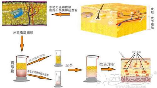在南京做脸部脂肪填充后多久可以洗脸?艺星yestar为您解答
