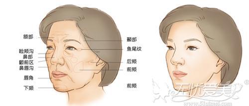 脸部脂肪填充可对抗凹陷及皱纹