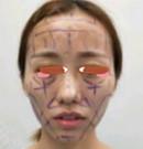 想知道长沙协雅自体脂肪面部填充怎么样就看我的手术经历