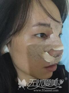 在长沙协雅花了23800元想做鼻综合手术圆了我多年的美鼻梦术前