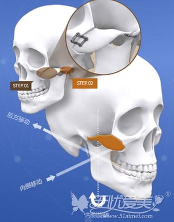 上海DA .美联巨颧骨移动术