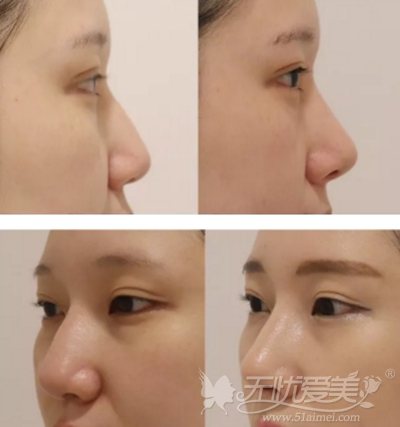 韩国纯真整形医院隆鼻手术案例