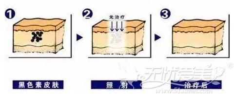 杭州华山连天美多维镭射祛斑过程