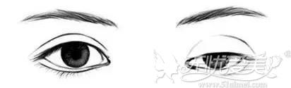 上睑下垂眼睛与正常眼睛的对比