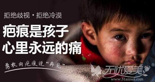 上海虹桥医院疤痕科祛疤