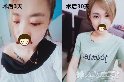 北京玲珑梵宫双眼皮术后瘢痕