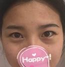 北京玲珑梵宫做全切双眼皮开内眼角眼下至让我变成大眼萌