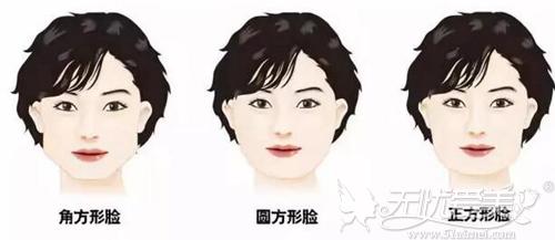 这些脸型需要通过颌面整形进行改善