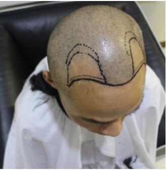 我在长沙协雅做毛发移植