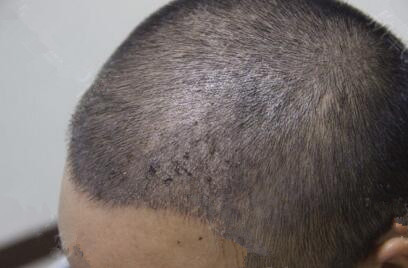 我在长沙协雅做毛发移植后照片