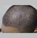 人到中年头发脱发严重 选在长沙协雅毛发移植重新找回自信