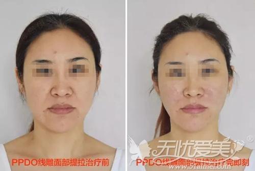 沈阳伊美尔面部线雕手术案例