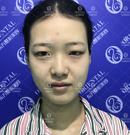 在福州东方整形听医生建议割了7mm宽双眼皮恢复记录图