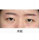 对比了几家医院后选择长沙雅美做了翘睫双眼皮效果很自然