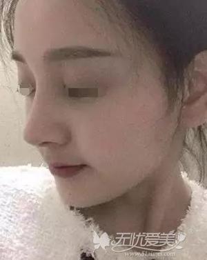 在宿州天使做鼻综合手术后20天