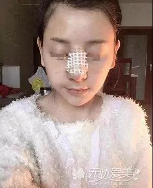 在宿州天使做鼻综合手术当天