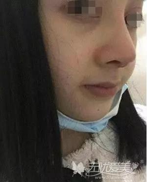 在宿州天使做鼻综合手术后7天