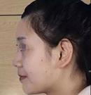 隆鼻多久能恢复?我在宿州天使做鼻综合1个月就恢复自然了