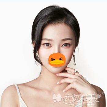 在上海DA美联臣做面部轮廓手术后半年