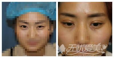 安庆星之地卢杰院长做割双眼皮效果