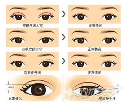 双眼皮失败的情况分析