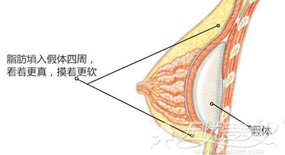 假体隆胸和自体脂肪隆胸植入层次解析