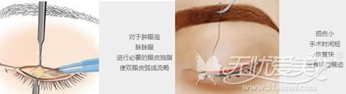 美莱翘睫双眼皮的美眼手术