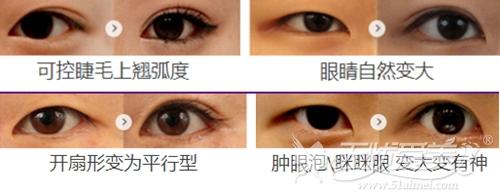 上海美莱翘睫双眼皮案例