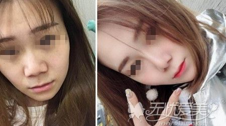北京长虹鼻综合手术案例