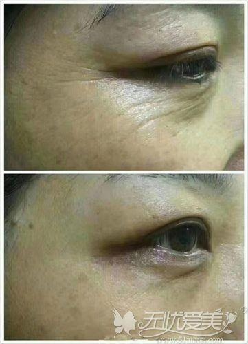 注射瘦脸除皱去鱼尾纹对比案例