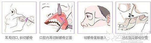 北京华韩颧骨内缩手术过程