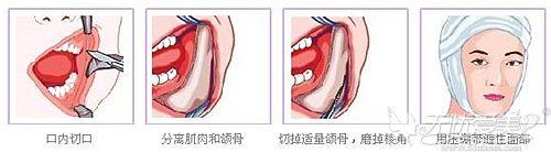 北京华韩下颌角手术过程