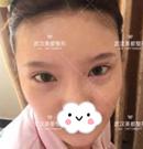 光纤祛眼袋有副作用吗?看我在武汉美都术后1个月恢复过程术前