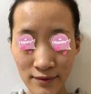 不动刀在北京伊美康做完面部脂肪填充让我摆脱尴尬凹凸脸