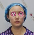 年过30面部下垂?看我在北京伊美康做超声刀除皱1个月效果
