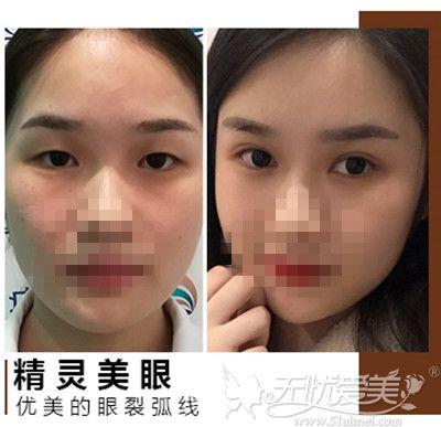 石家庄天宏整形医院双眼皮手术真实案例