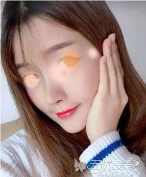 江门华美胡凯博士隆鼻案例