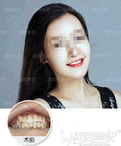 贵阳美莱牙齿矫正真实案例